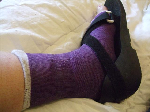 broken-foot-2011-jan-1z-small.jpg